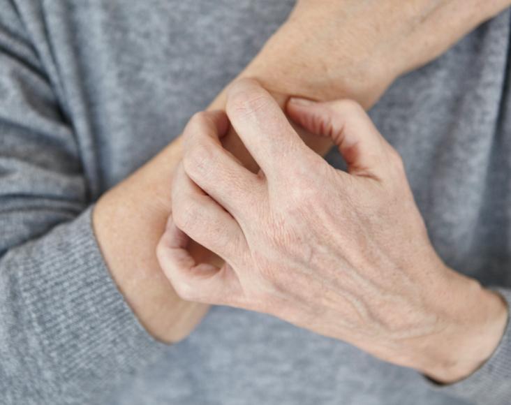 Síntomas de la covid-19: Erupciones cutáneas o cambios de color en los dedos de las manos o los pies